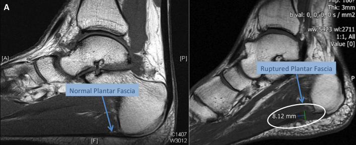 ruptured-plantar-fascia
